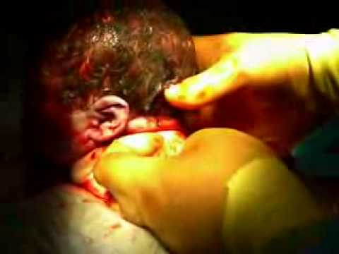 Child BORN Live Child Birth Video born