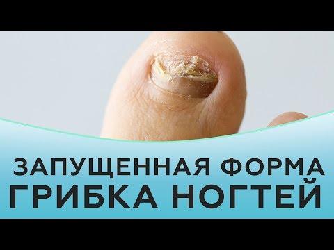 Грибок ногтей. Лечение запущенной формы грибка ногтей