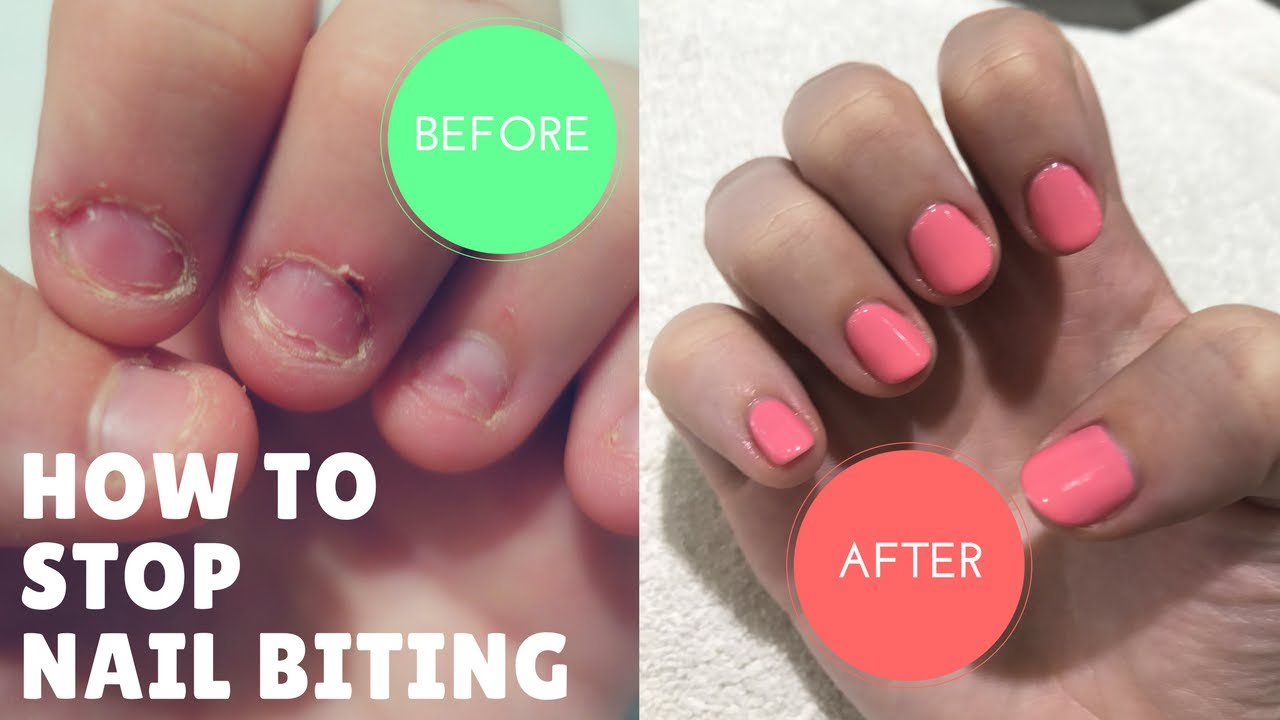 How I Stopped Biting My Nails After 20 Years