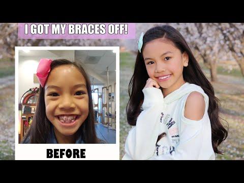 I GOT MY BRACES OFF! 😱VLOG