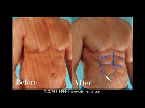 Plastic Surgery for Men, Dr. Henry Mentz, Board-Certified Plastic Surgeon, Houston, Texas