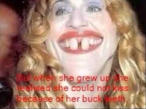 Hot girls with buck teeth