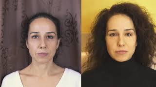 Mezopen - kollagén indukciós terápia - arcplasztika vágás nélkül