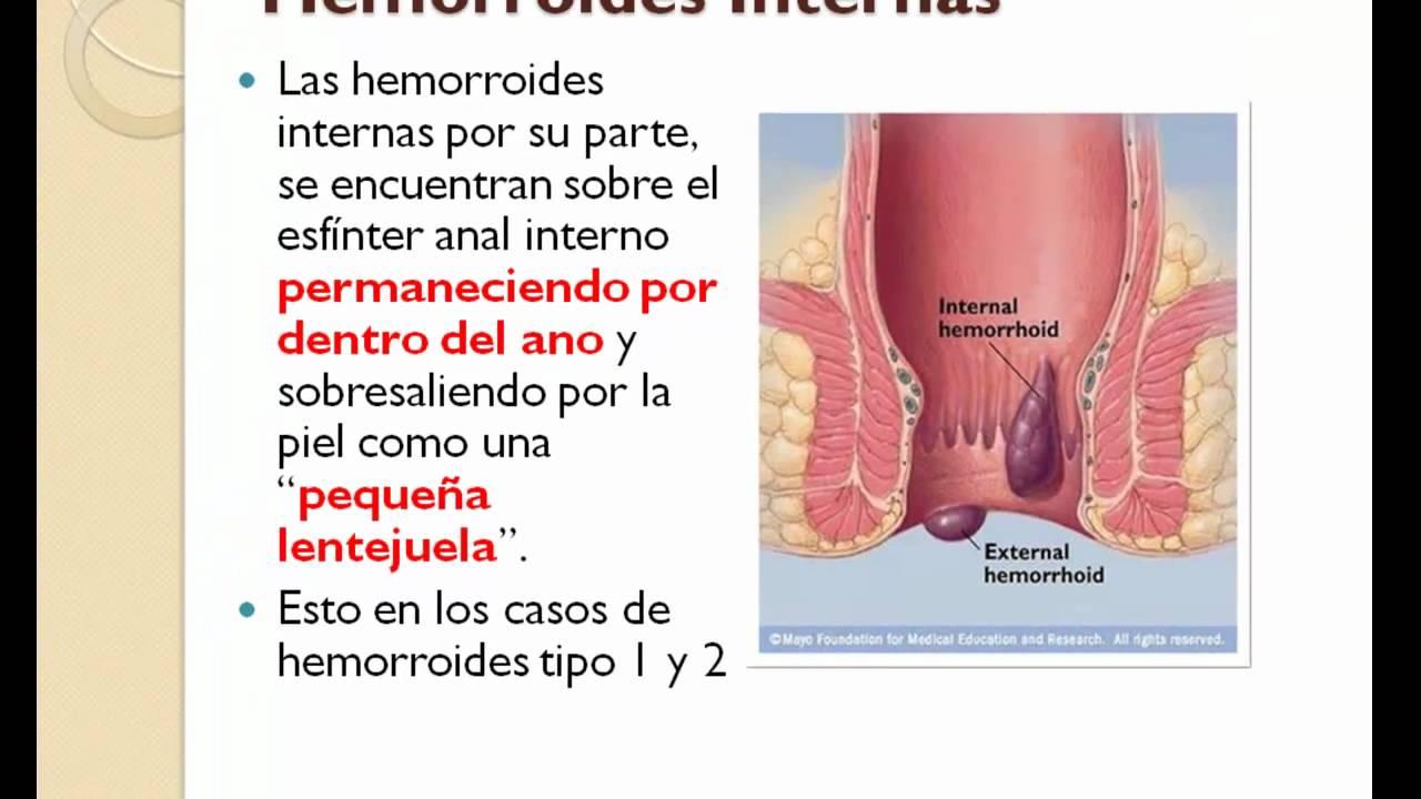 Hemorroides Externas: ¿Como Son? - YouTube