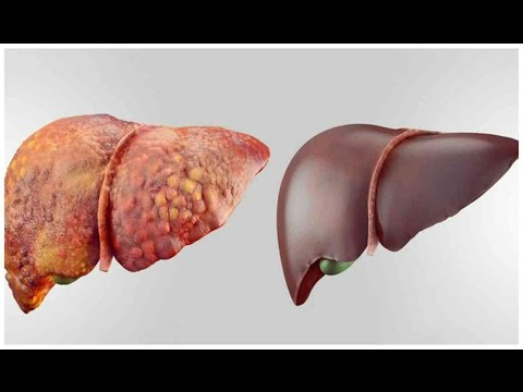 4 FOODS THAT CAN DETOX YOUR LIVER FAST AND KEEP IT HEALTHY ! | Health Vlogger