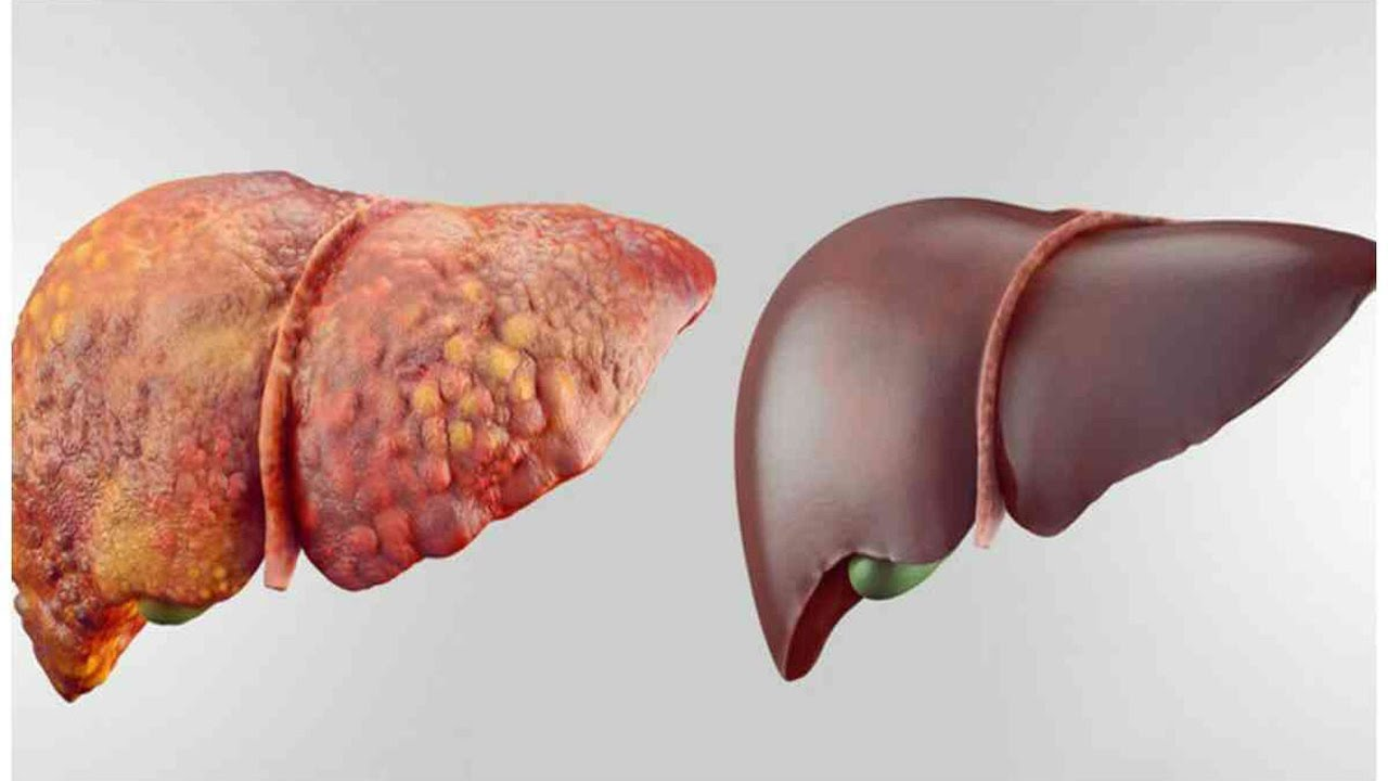 4 FOODS THAT CAN DETOX YOUR LIVER FAST AND KEEP IT HEALTHY ...