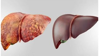 4 FOODS THAT CAN DETOX YOUR LIVER FAST AND KEEP IT HEALTHY !...