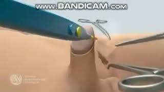 남자 포경수술 과정