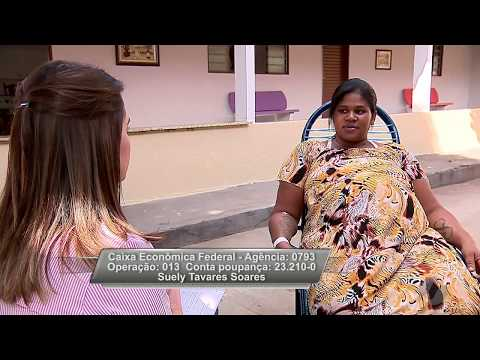 JMD (17/05/18) Gêmeas  Siamesas Do Tocantins Vão Nascer Em Goiânia