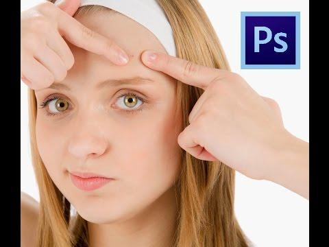 Удаление прыщей на лице при помощи программы Adobe Photoshop. #2
