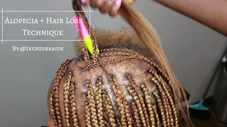 NEW TECHNIQUE| ALOPECIA + HAIR LOSS| BOX BRAIDS | @IRENESBRAIDS
