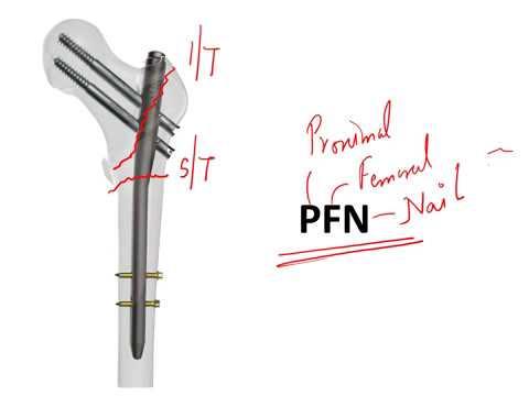 orthopedics-instruments