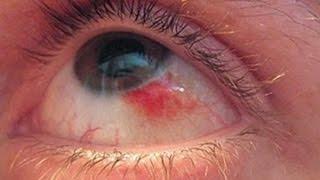 видео Флоксал глазная мазь аналоги