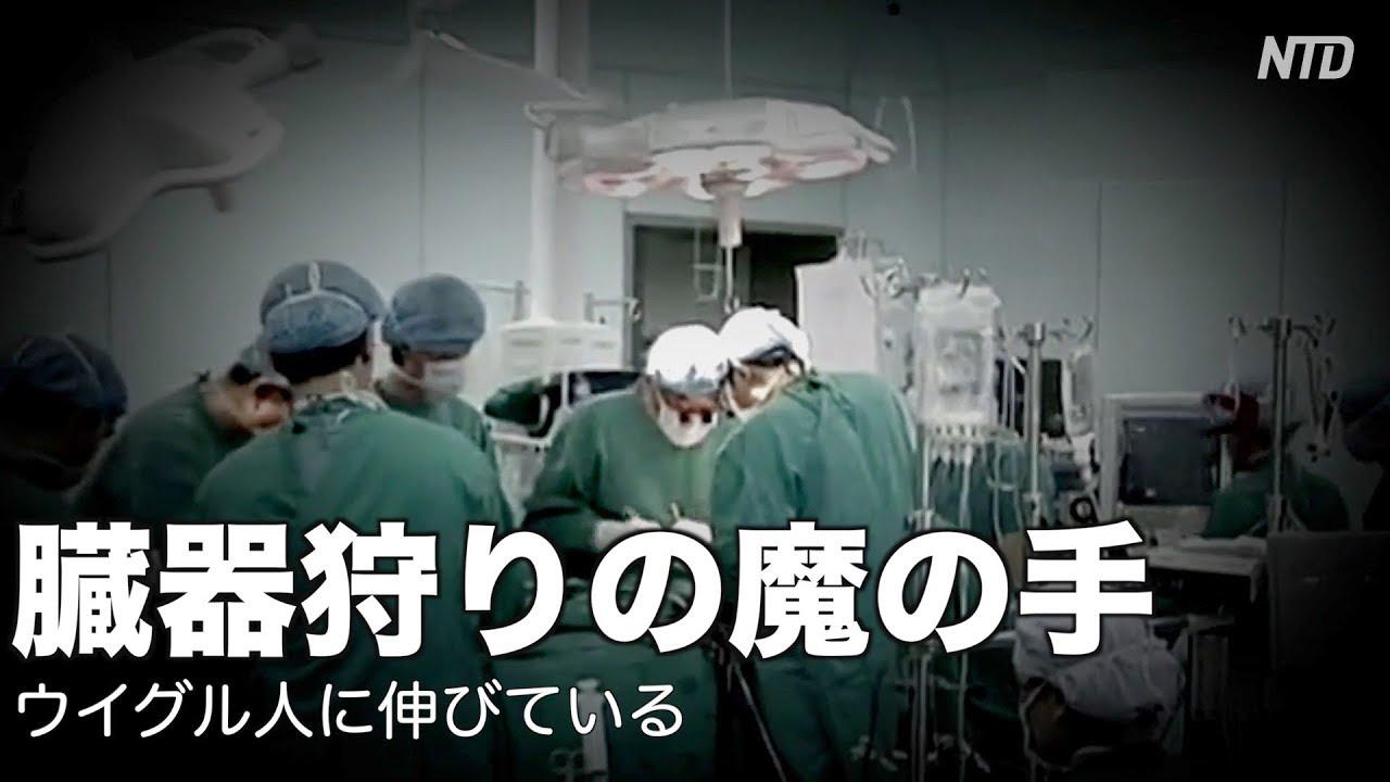 臓器 ウイグル