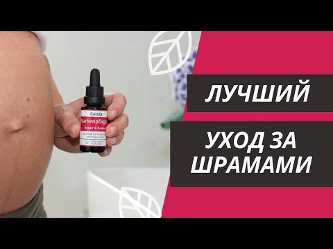 Восстанавливающее и защитное масло от шрамов от компании Casida – Косметический уход за шрамами ▶✅