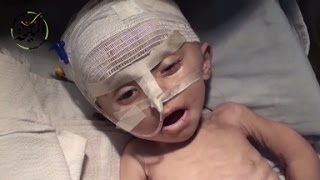 Starving children dying in Syria