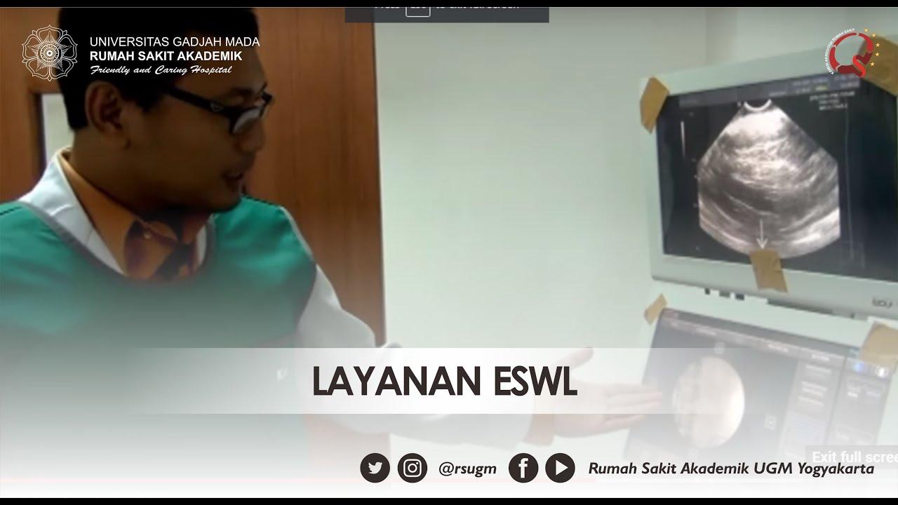 Layanan ESWL di Rumah Sakit UGM Yogyakarta - YouTube