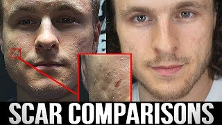MY ACNE SCAR TREATMENT RESULTS TWO YEARS LATER | Realistic Expectations