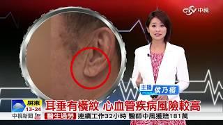 ✅【苦行健康】從耳垂看出心肌梗塞前兆blood vessels?!苦行老師教您如何自醫。
