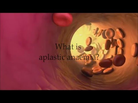 What is Aplastic Anaemia?