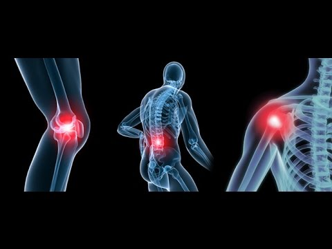Education on Degenerative Joint Disease  (Osteoarthritis) -- Dr Mandell