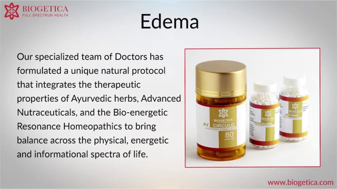 Can Natural Edema Treatment of cure Edema ? - YouTube
