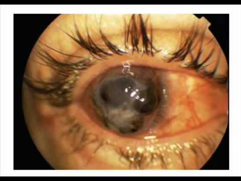 Laser Eye Surgery 2012 Side Effects Warning Youtube