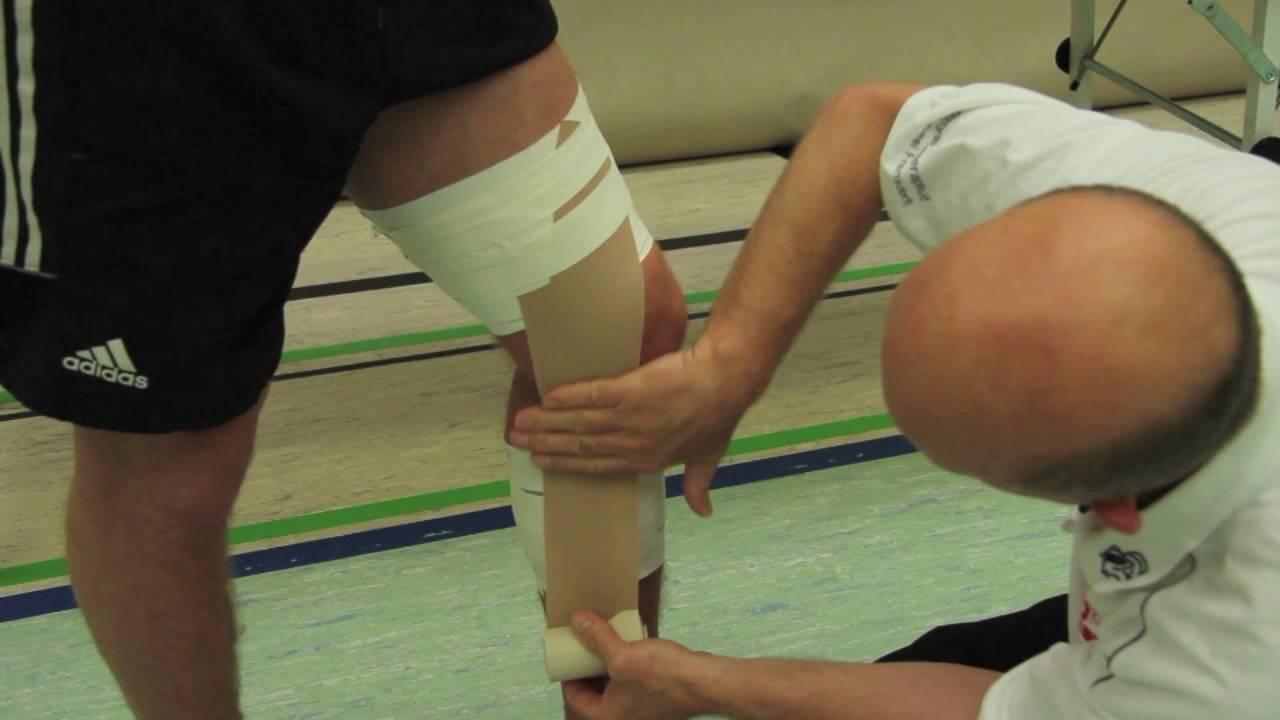 Knie tapen innenbandzerrung Innenbandzerrung knie