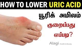 யூரிக் அமிலம் குறைப்பது எப்படி? | How to Lower URIC ACID | How to reduce high Uric Acid level