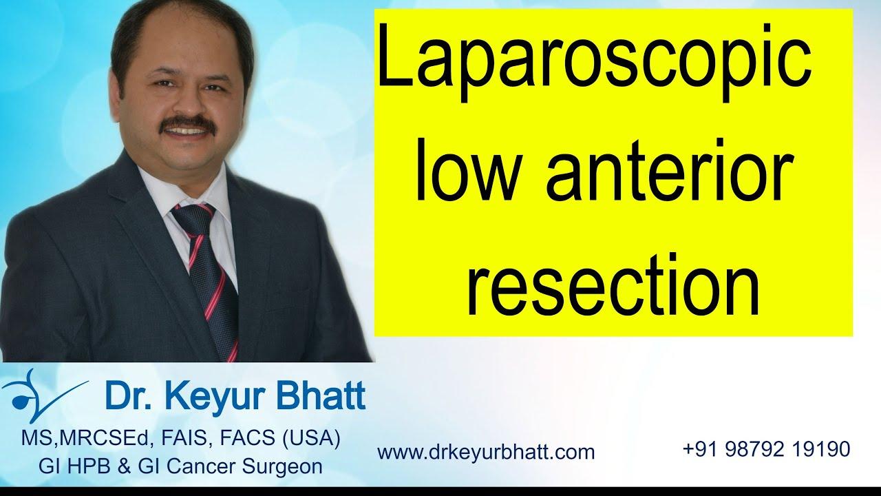 Laparoscopic LAR ( low anterior resection) - YouTube