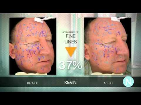 NeriumAD - Age Defying Treatment for the Skin