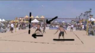 How to play beach volleyball - Defense, Don