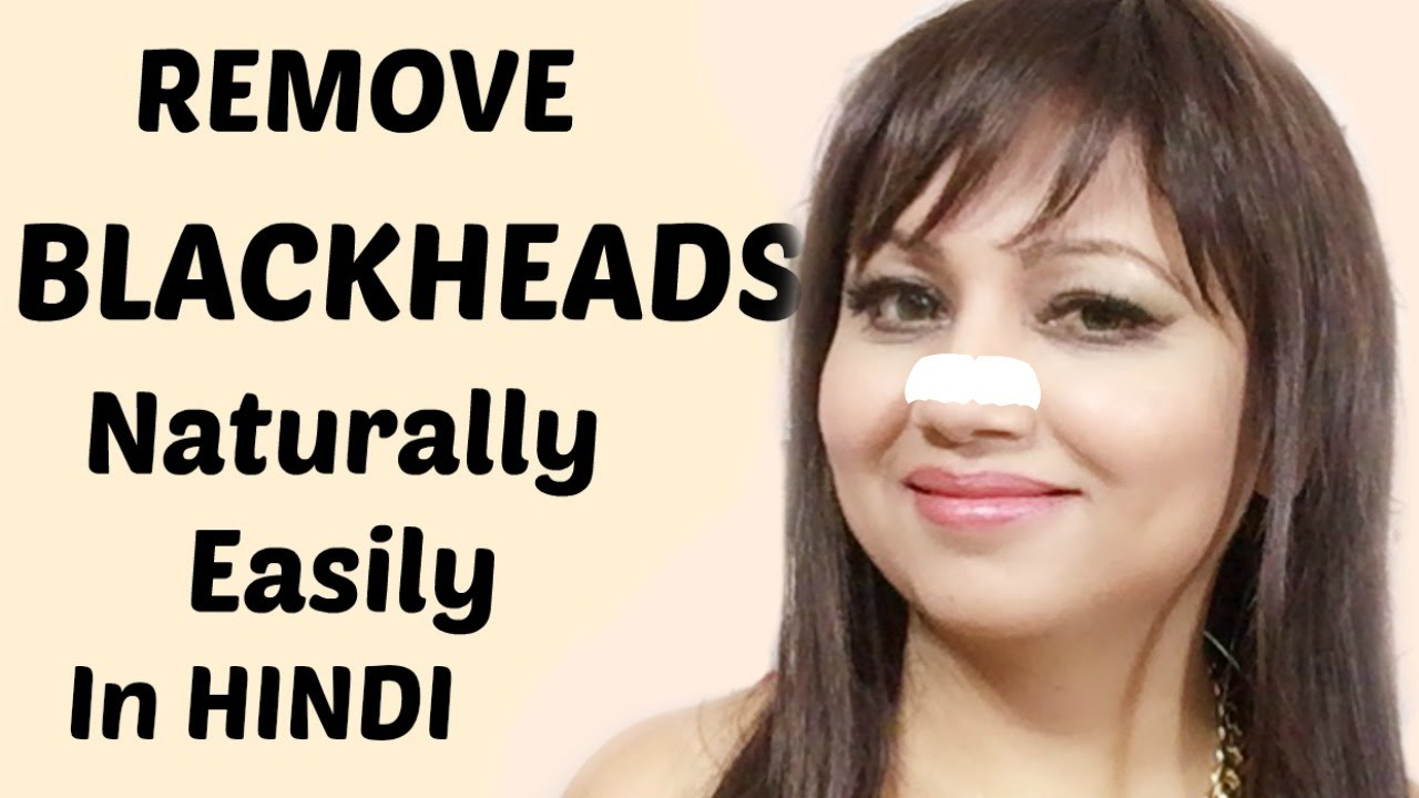 Remove Blackheads Naturally In Hindi