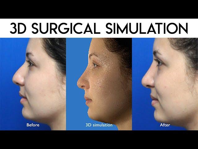 3D Surgical Simulation