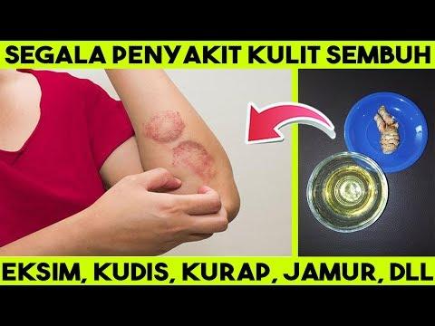 menyembuhkan-segala-penyakit-kulit-gatal:-abses,-kudis,-kurap,-borok,-eksim-dll