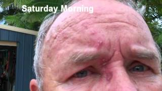 Diary of a Shingle Rash.How the virus took over my face.