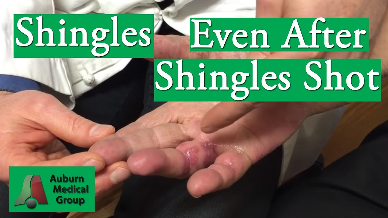 shingles chickenpox and certain medicines Anyone who has had even a mild case of chickenpox can get shingles this months or even years after the shingles rash heals certain medicines, such as.