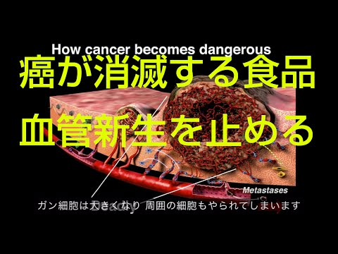 がん治療抗がん剤 がんが消滅する食品 ウィリアム・リー ted日本語字幕