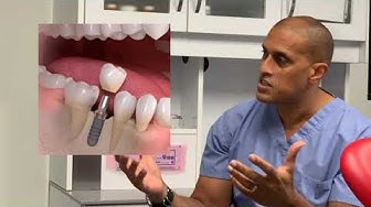 How Much do Dental Implants Cost in Washington, DC (Dr. Brian Laurence & Dr. Armin Abron)