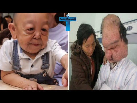Top 10 Real Unbelievable People With Genetic Mutations