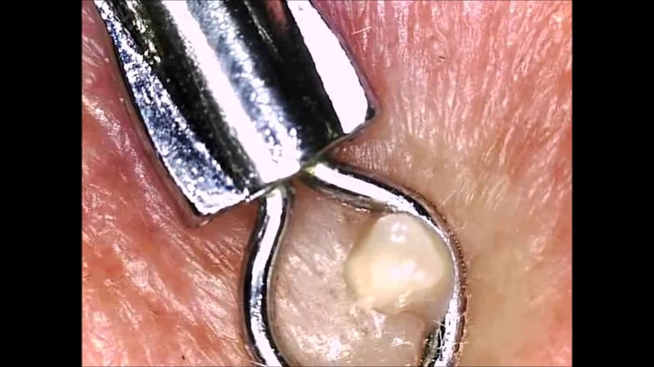 Comedone Extractor Tool (Blackheads & Whiteheads) - YouTube