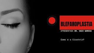 BLEFAROPLASTIA (CIRURGIA DAS PÁLPEBRAS) - Como é a Cicatriz?