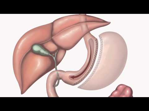 Bariatric Surgery | Types of surgery | 2/3
