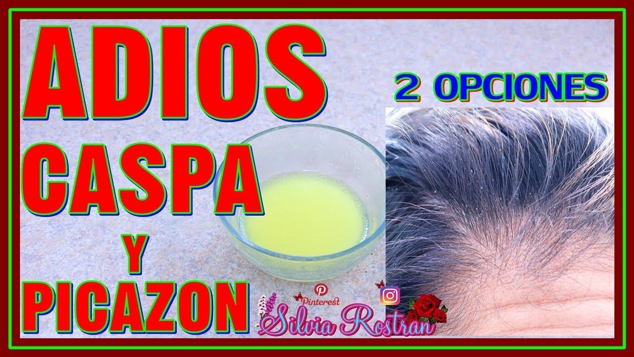 tratamiento casero para eliminar la caspa del cabello