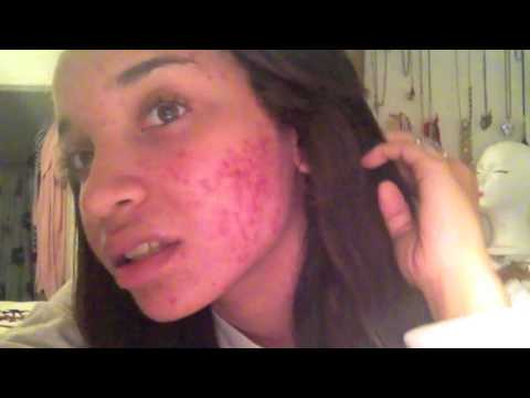 SKIN| My Acne Journey | RAVEN ELYSE