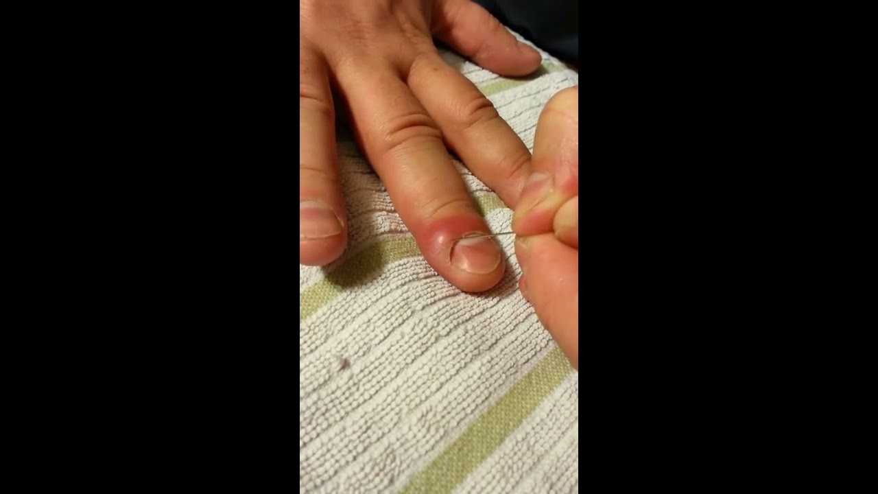 Lance or drain ingrown nail or infected cuticle - YouTube