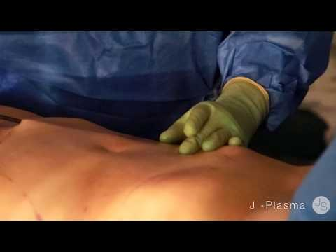 The Most Dramatic Skin Tightening Procedure | J-Plasma | Beverly Hills | Doctor Jaime Schwartz
