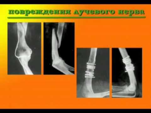 Перелом плечевой кости со смещением и без – реабилитация