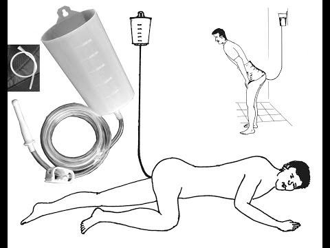 Home Enema Equipment