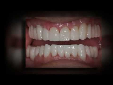 Best Whitening Toothpaste >> Dental Crowns Cost - YouTube